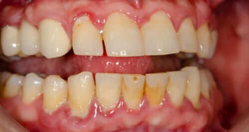 Gingivitis, Periodontal Disease and Treatment