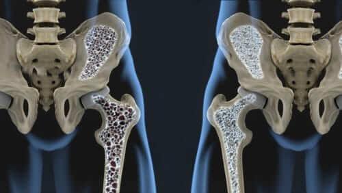 Osteoporosis, Bone Health and Curcumin